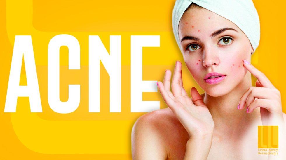 Acne é um problema comum, que precisa ser tratado.
