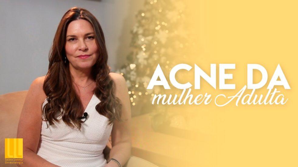 Mulheres podem ter acne na fase adulta. Veja como tratar.